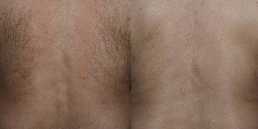 5 Reasons men need laser hair removal!